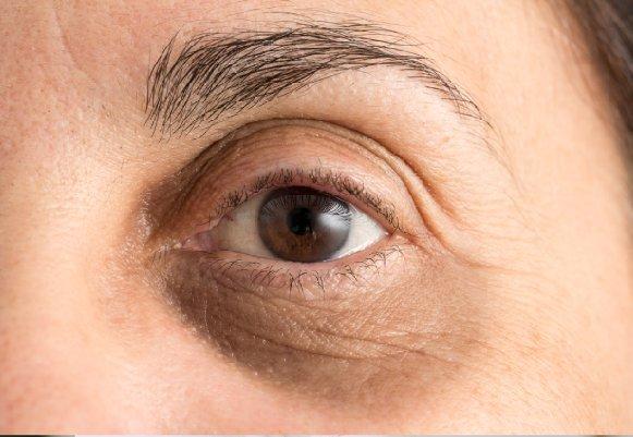 Undereye Dark Circles Treatment