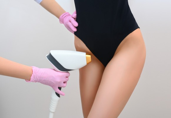 Intimate Laser Hair Removal